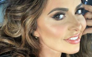 Gloria Trevi después de implantes dentales