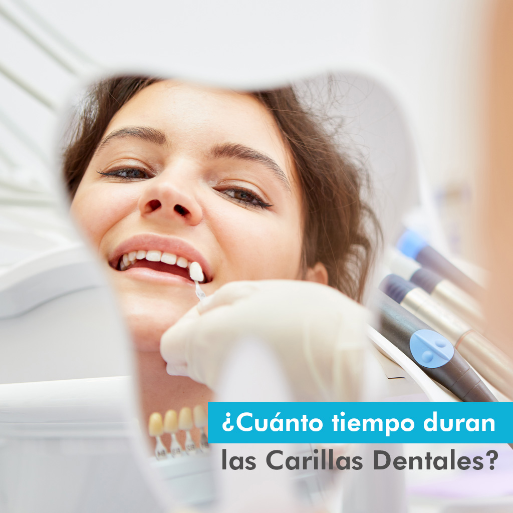Cuánto duran las carillas dentales