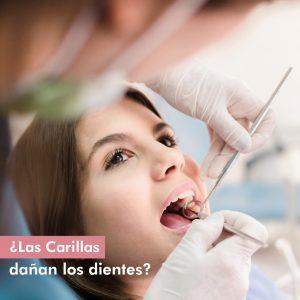 Las carillas dañan los dientes