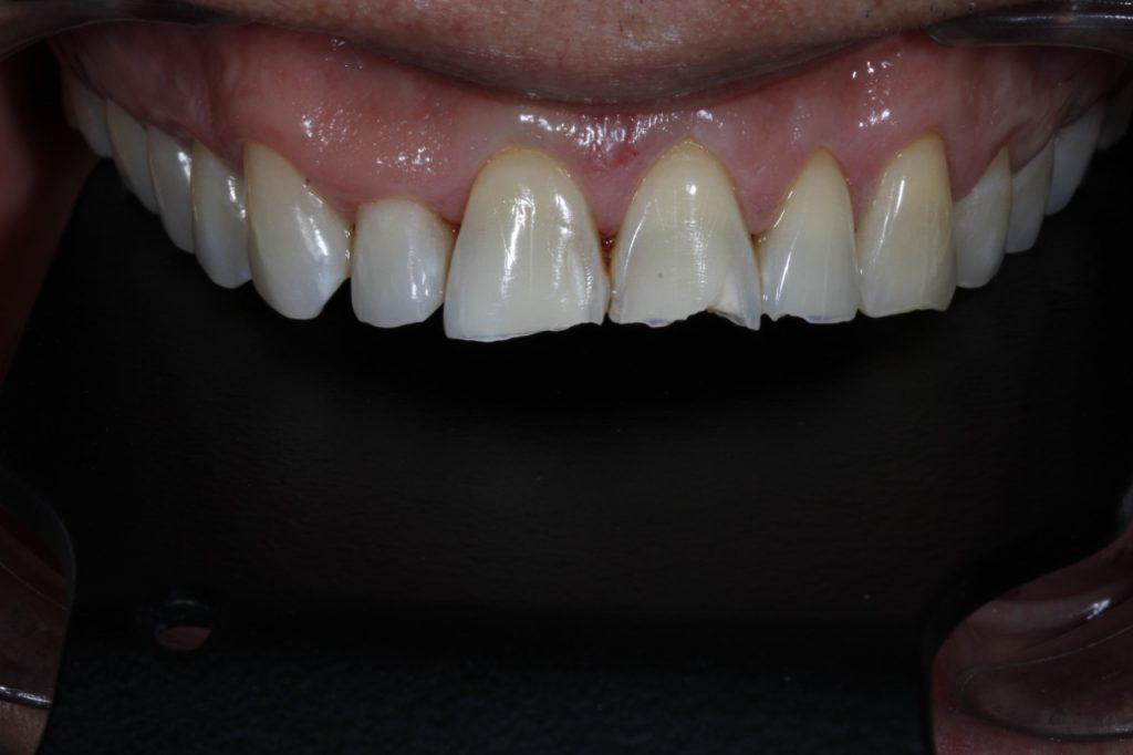 Antes de Carillas Dentales