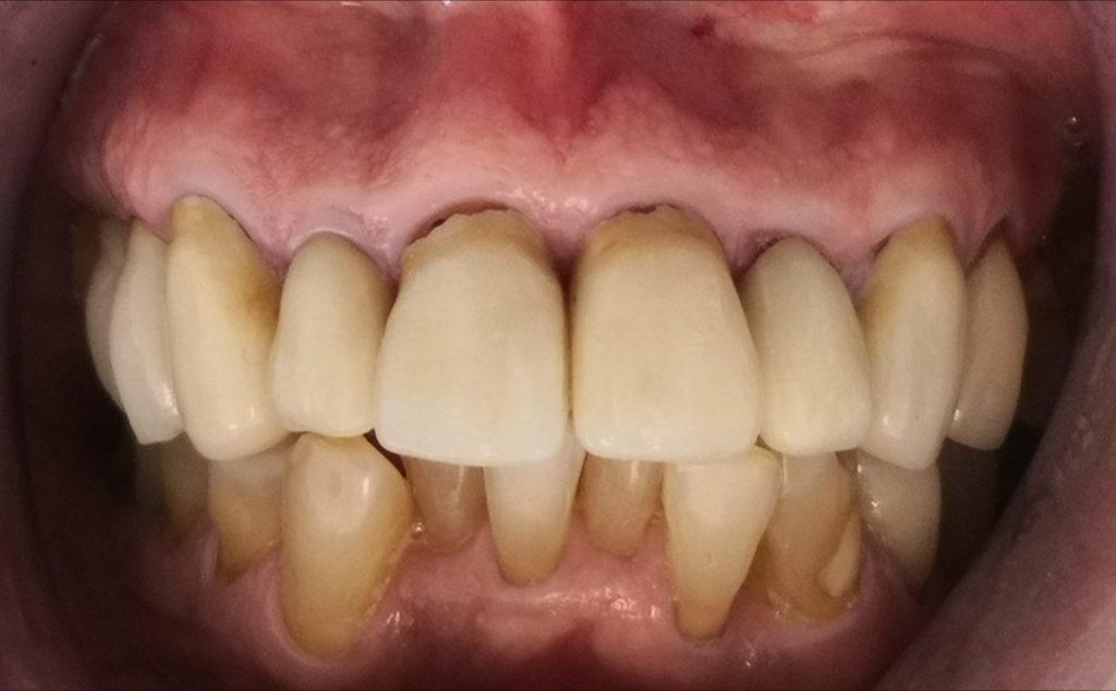 Corona Dental Antes