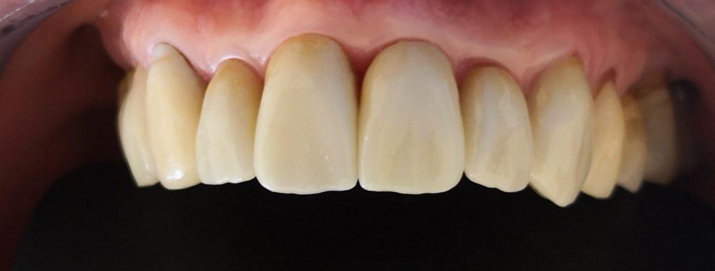Corona Dental Después