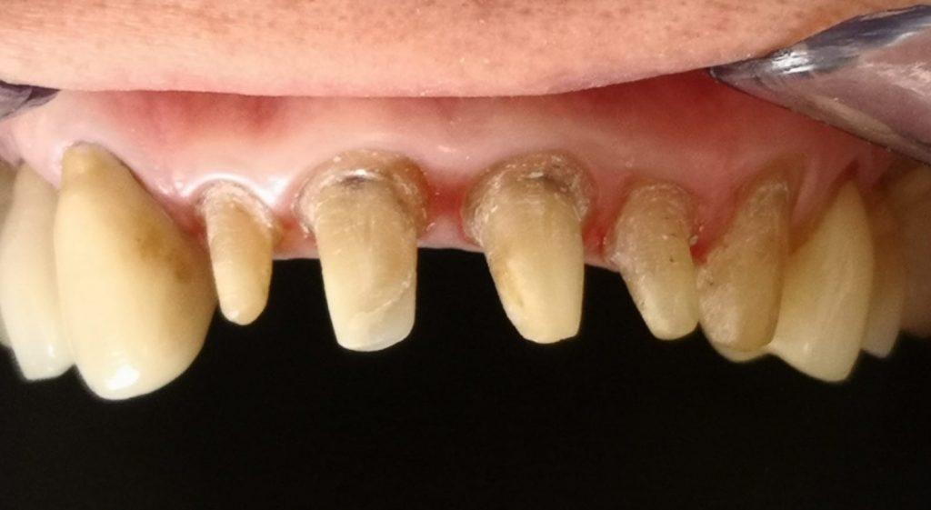 Coronas Dentales Antes