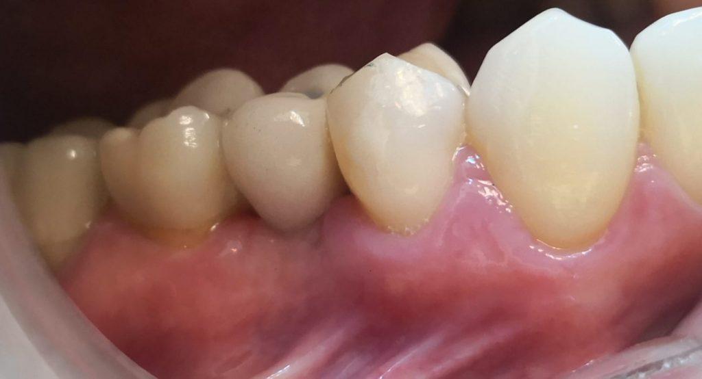 Después de Implantes Dentales CDMX